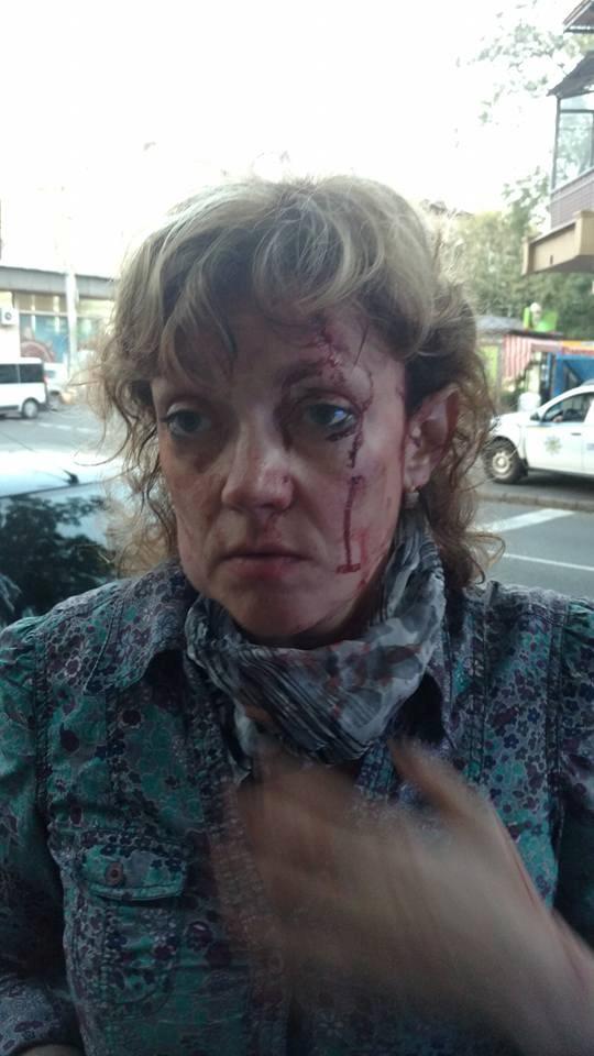 Тенденция насилия: в Одессе избивают активистов, выступающих против мэра Труханова