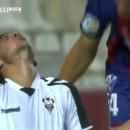 Футболисту наложили 10 швов на мужской орган после удара игрока сборной Украины