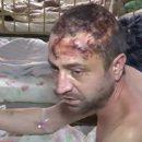На Житомирщине бывший милиционер устроил жесткие пытки своему брату: жуткое видео
