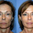 Подтяжка лица омолаживает и помогает устранить изменения, которые наступают с возрастом