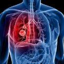 Несвойственные симптомы рака легких, которые нужно знать