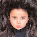 Показали фото девочки с аномальными волосами