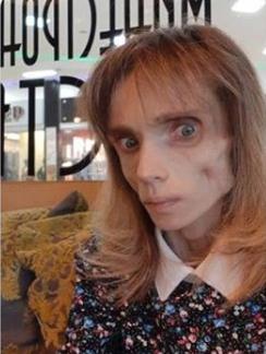 Худеющая россиянка снизила вес до 17 кг: умирающая выкладывает фото и видео
