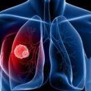 Медики назвали ранние симптомы рака легких