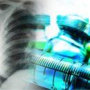 Вчені виявили «грізну зброю» для боротьби з туберкульозом