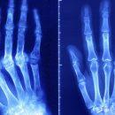 Медики нашли метод восстановления хрящей человека
