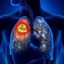 Врачи назвали самые распространенные симптомы рака легких